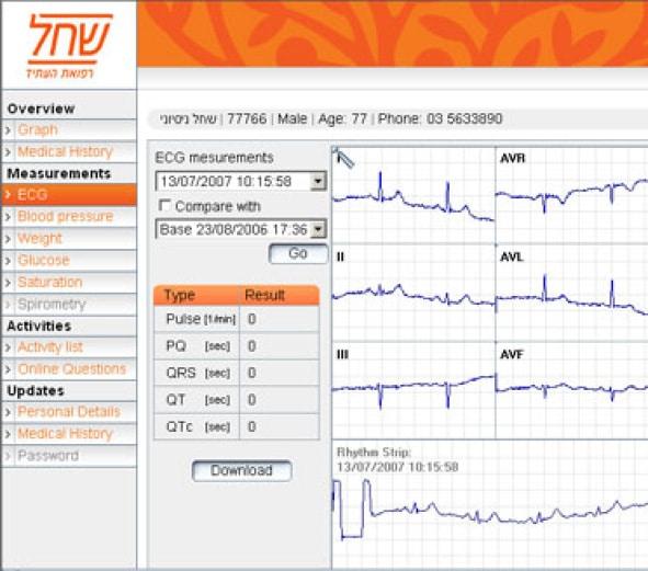 מדידת לחץ דם