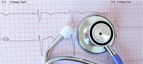 ניטור התקף לב